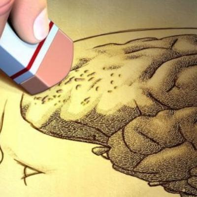 ¿Se puede revertir el Alzheimer?